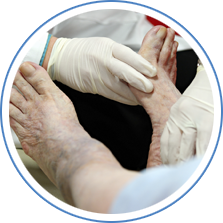 Management of Diabetic Foot Ulcers