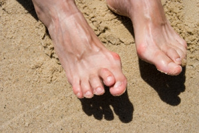 What Is a Hammertoe?