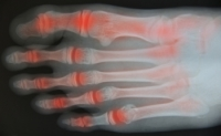 Can Rheumatoid Arthritis Occur in Feet?