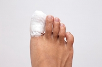 What to Do About a Broken Toe