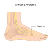 Who is Prone to Developing Morton's Neuroma?
