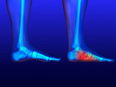 Stretches for Flat Feet