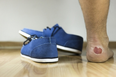 A Possible Cause of Blisters on the Feet